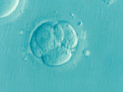Photo of IVF